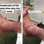 Tony Finau Gives No Fucks About His Ankle