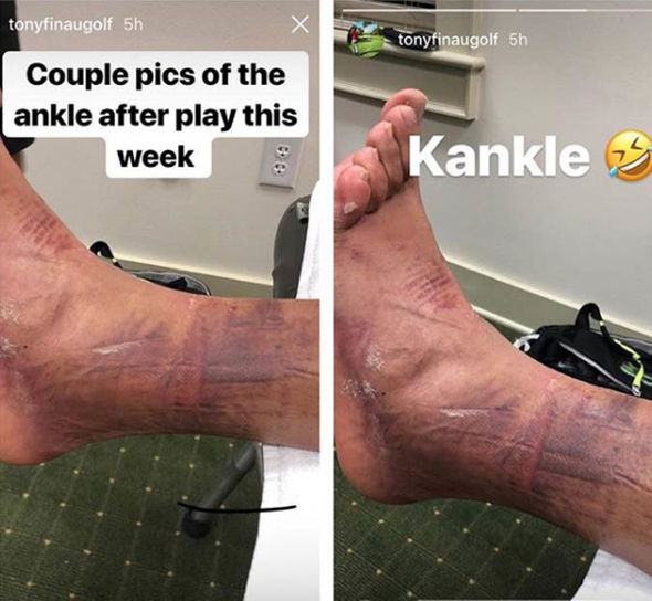 Tony Finau doesn't give a fuck about his busted ankle.